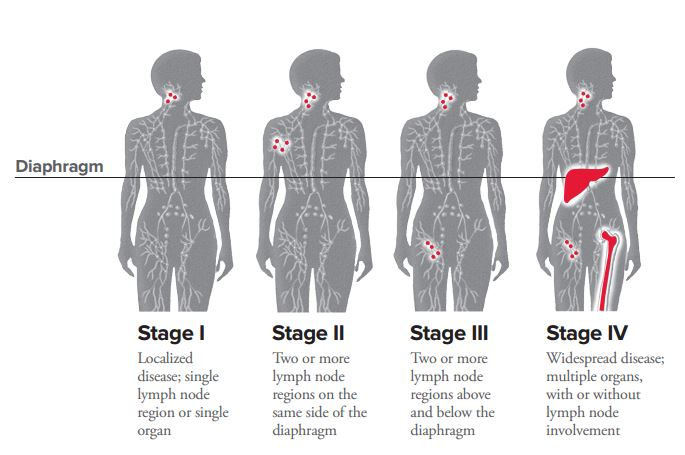 diagram of parts of toilet diagram of iv sites hodgkin lymphoma staging leukemia and lymphoma society