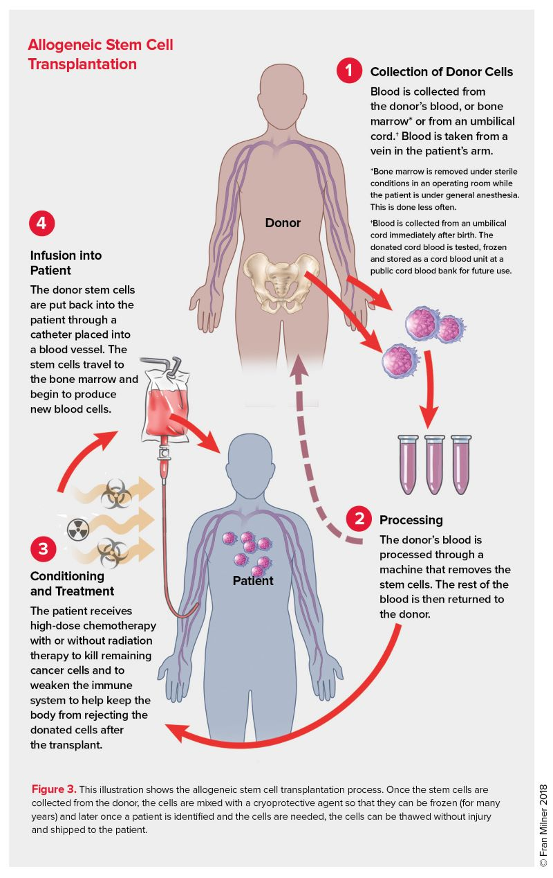 Allogeneic Stem Cell Transplantation Leukemia And Lymphoma Society