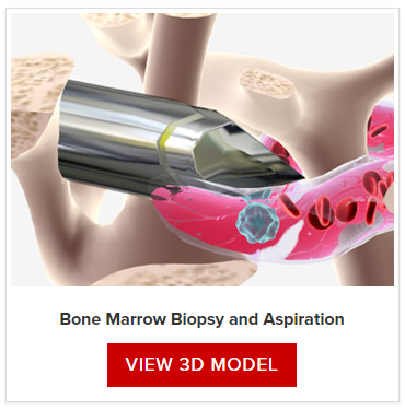 Bone Marrow Tests | Leukemia and Lymphoma Society