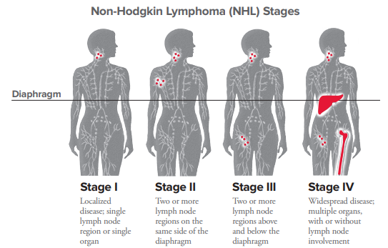 NHL Staging | Leukemia and Lymphoma Society